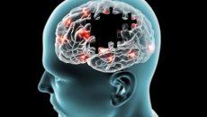 Pie de foto: Un conglomerado anormal de la proteína Tau (la cual actúa como enlace del puente que lleva pensamientos y recuerdos), llamado depósito o placa amiloide, característicos en la enfermedad de Alzheimer, y en los que se hallan altas concentraciones de cobre, hierro y zinc (Foto: tomada de i2.wp.com/secuenciasalud.com.)