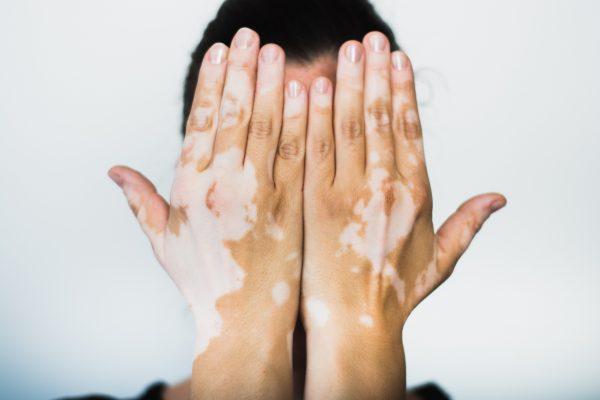 El vitiligo es una patología no contagiosa que se presenta en hombres y mujeres de todo el mundo. Fotografía: Shutterstock.